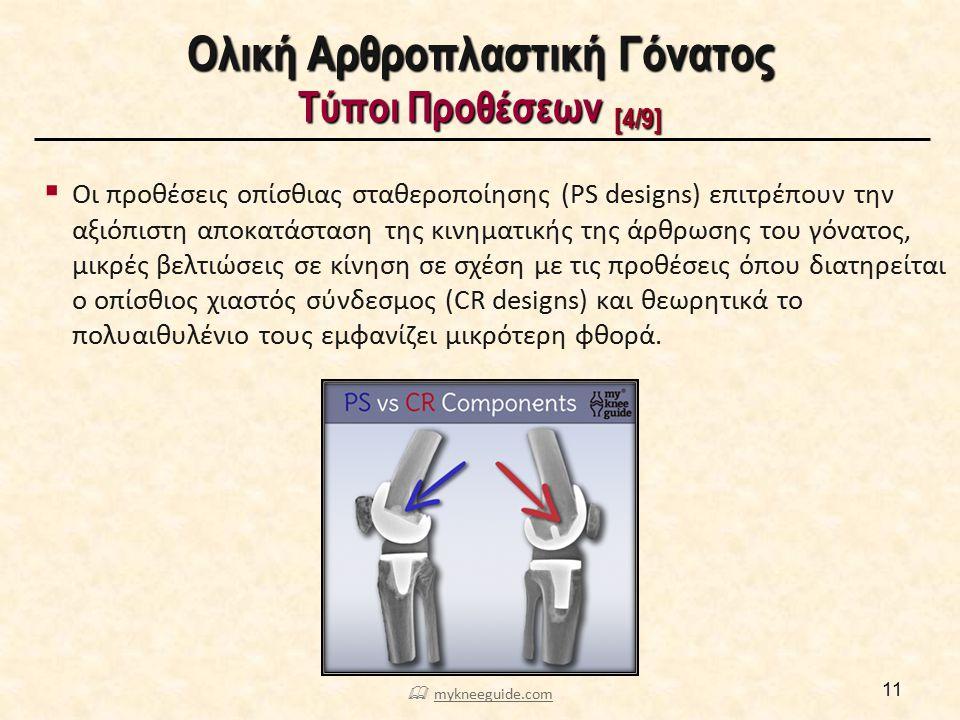 Ολική Αρθροπλαστική Γόνατος Τύποι Προθέσεων [5/9]